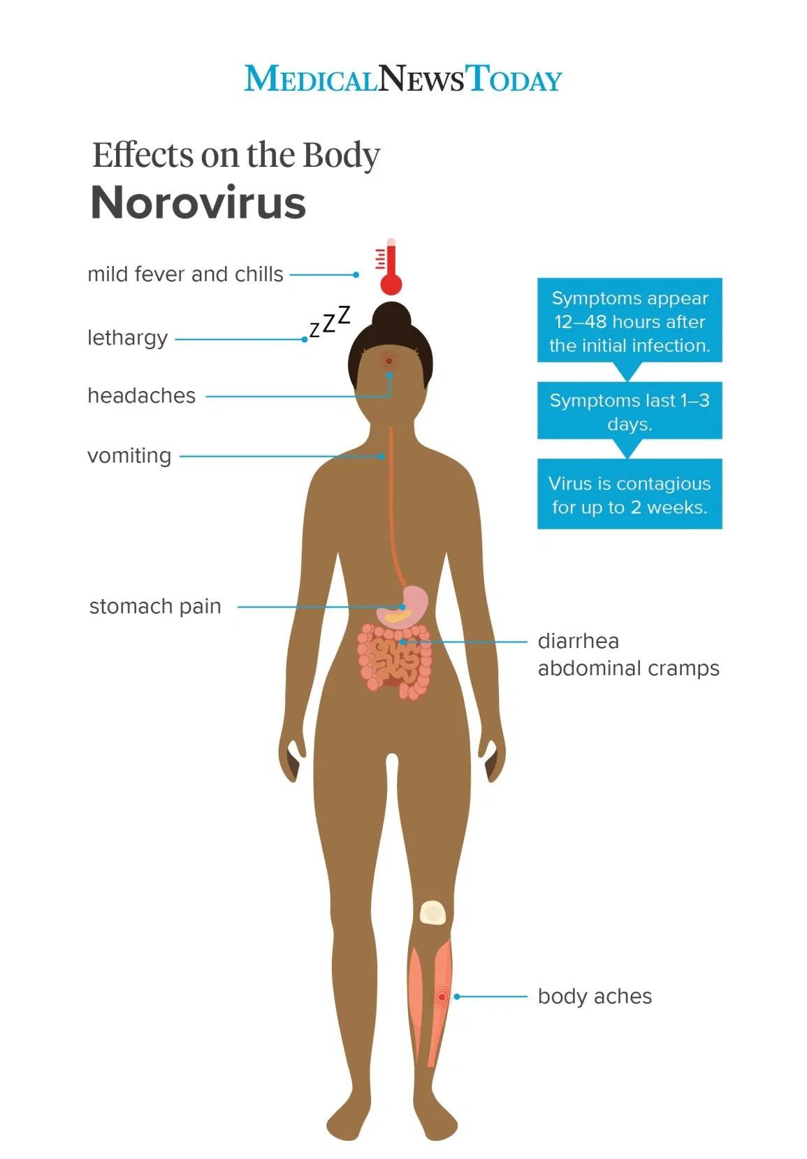Medical News Today Covid Norovirus Illness Symptoms